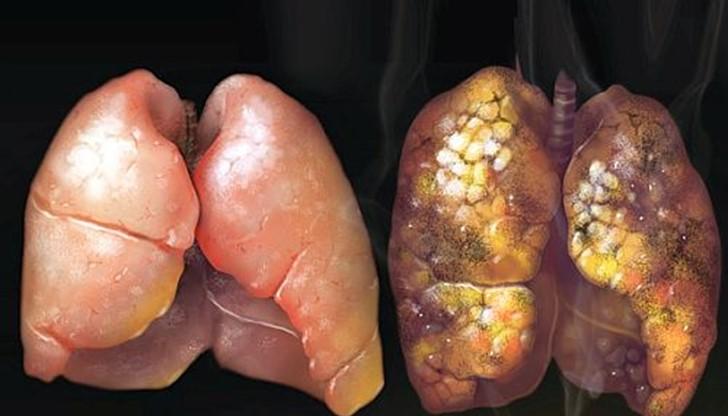 Как да изчистим дробовете