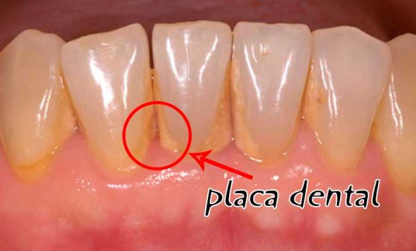 Как да махнем зъбния камък