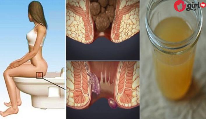 как се лекуват хемороиди