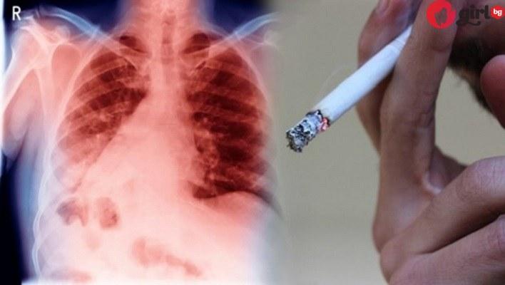 руско чудо за белите дробове